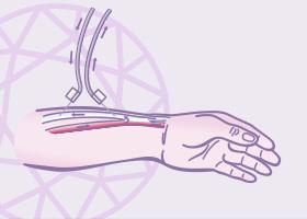 angiolaser-doencas-vasculares-fistula-imagem-thumb
